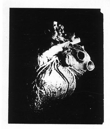 [Andy Warhol Heart]
